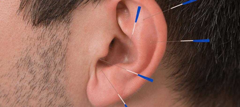 acupunturaparaacufenos